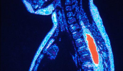 最近の症例・側弯症と肋間神経痛